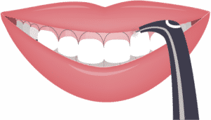 gummy smile before laser gum lift in Sumter and Columbia, South Carolina